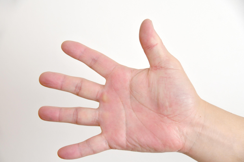 パーを出した男性の手